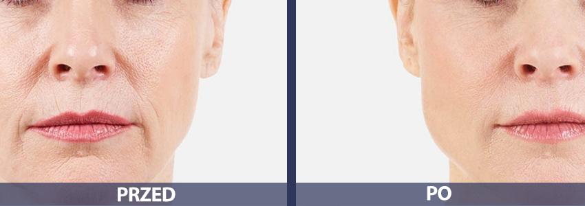 Kwas hialuronowy - przed i po