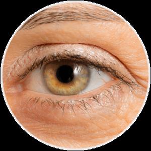 Zmarszczka wokół oka