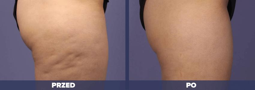 Cellulit - przed i po