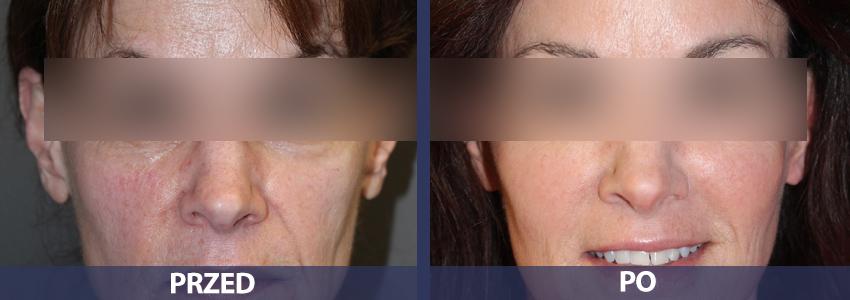 Dermapen - przed i po